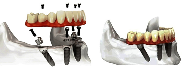 protesi5